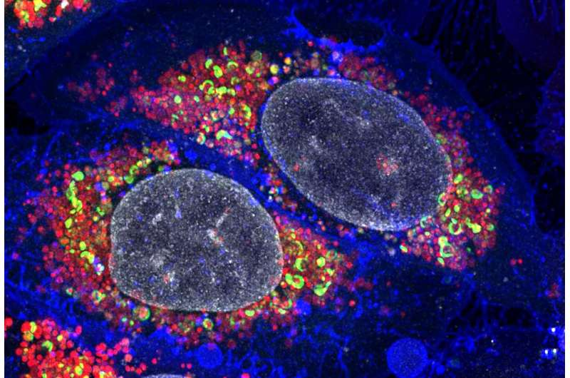 Teaching human cells to clean house to delay aging and fight neurodegeneration