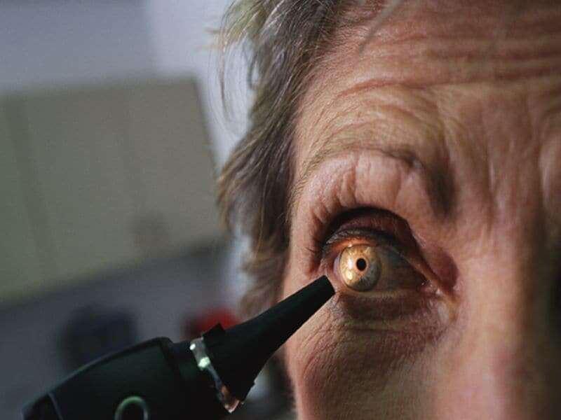 Vitamins, carotenoids associated with lower risk for cataract