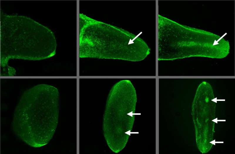 Voltage gated calcium channels 'read' electric patterns in embryos to create cartilage and bone