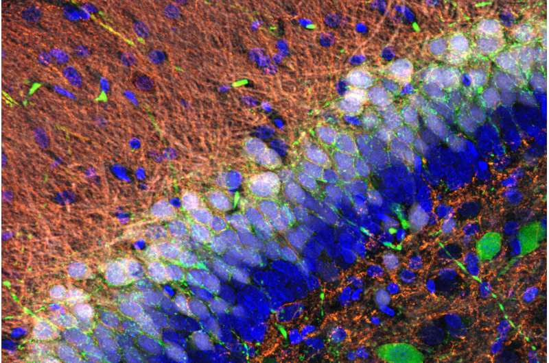 Why nerve cells in the brain process information differently