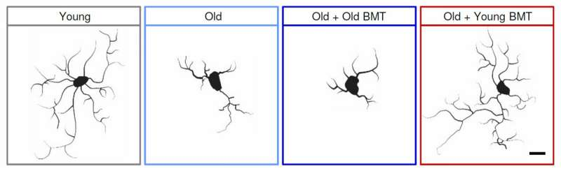 Young bone marrow rejuvenates aging mouse brains, study finds