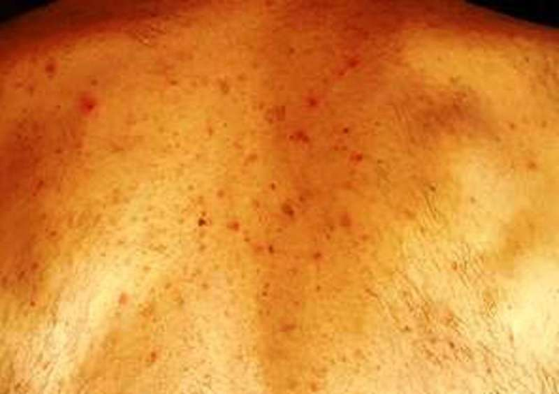 8 ways the coronavirus can affect your skin, from COVID toes, to rashes and hair loss