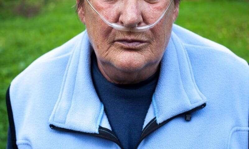 Antibiotics, corticosteroids beneficial in COPD exacerbations