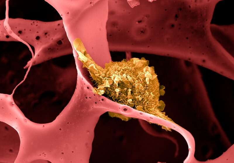 Biomaterial-based cancer vaccine combines chemo and immunotherapy to treat triple-negative breast cancer