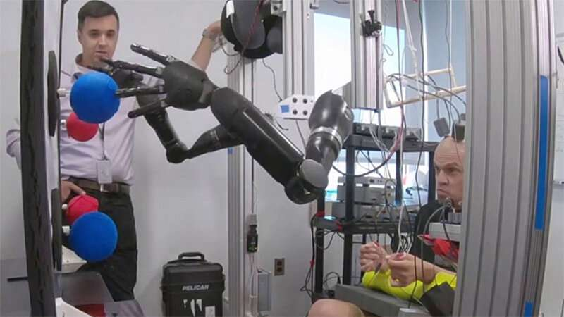 Brain implants enable man to simultaneously control two prosthetic limbs with thoughts