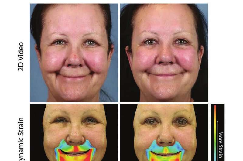 Express yourself: Dermal fillers restore youthful facial movement, don't just fill wrinkles