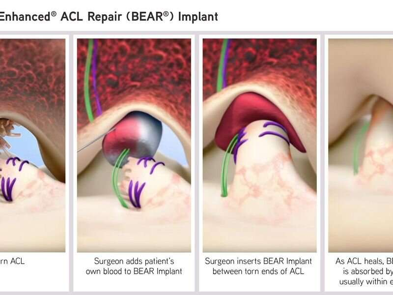 FDA authorizes marketing of ACL implant