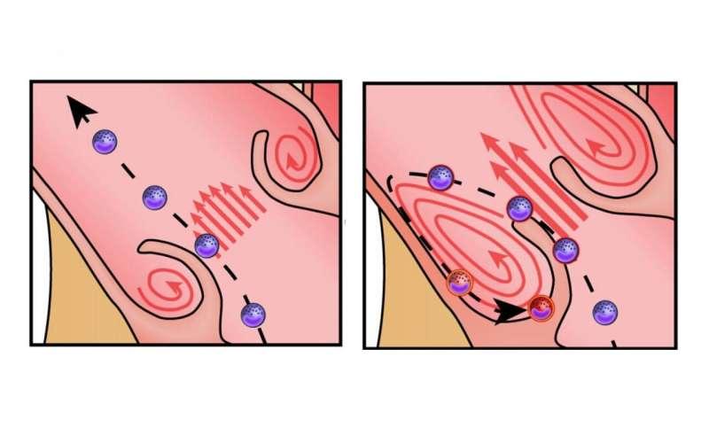 Hyperactive immune cells accelerate heart valve disease: Study