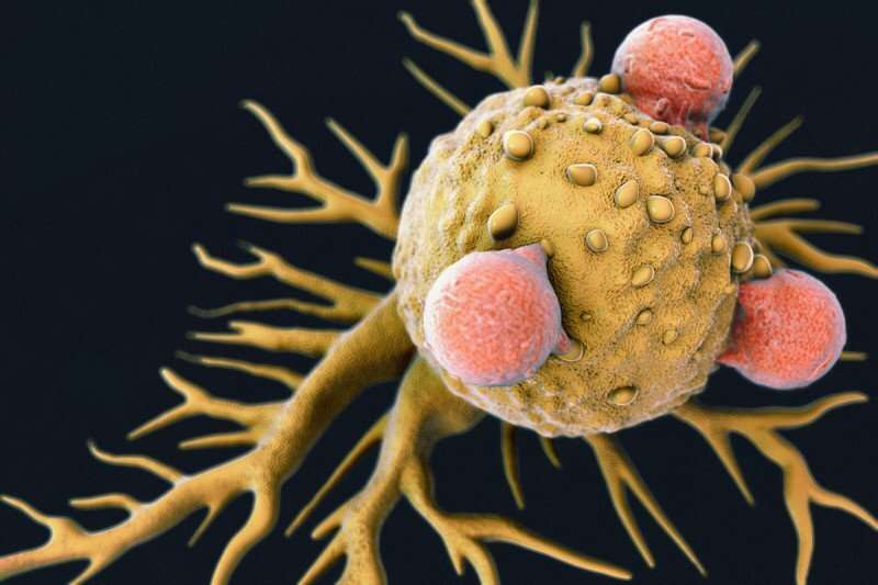 Newly discovered immune cell type may be key to improving pancreatic cancer immunotherapy