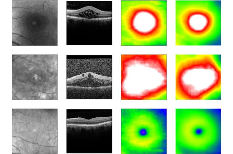 Novel deep learning method enables clinic-ready automated screening for diabetes-related eye disease