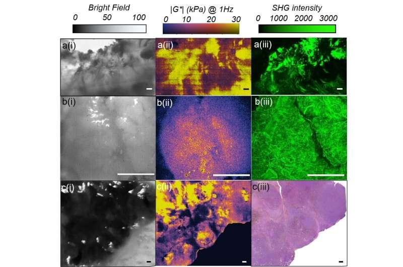 Optical Imaging of Tissue Mechanics via Laser Speckle Rheology