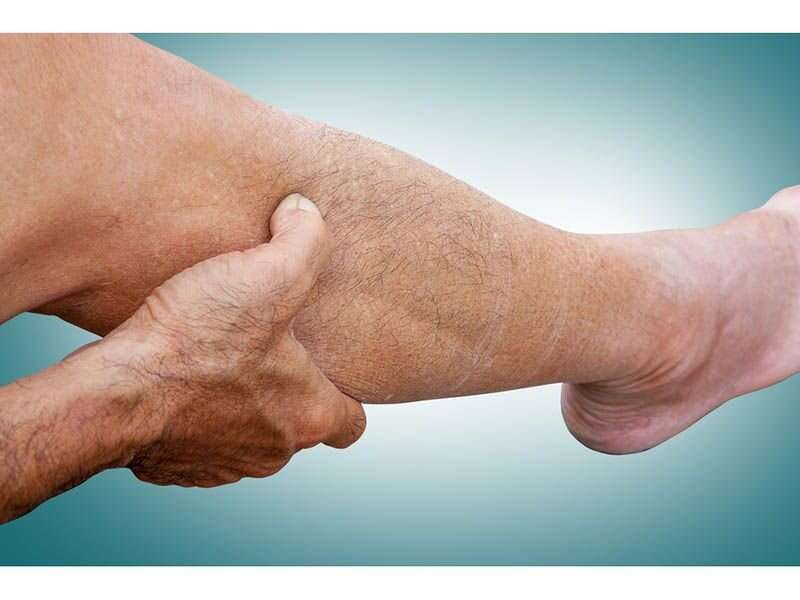 Peripheral neuropathy linked to mortality in U.S. population