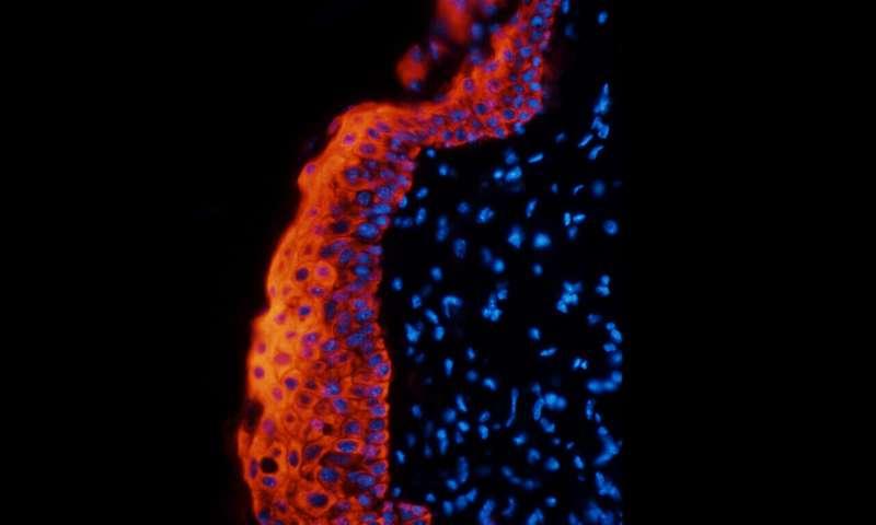 Potential new target to combat inflammatory diseases