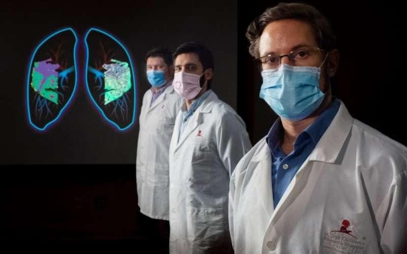 Research advances understanding of life-threatening lung inflammation following the flu