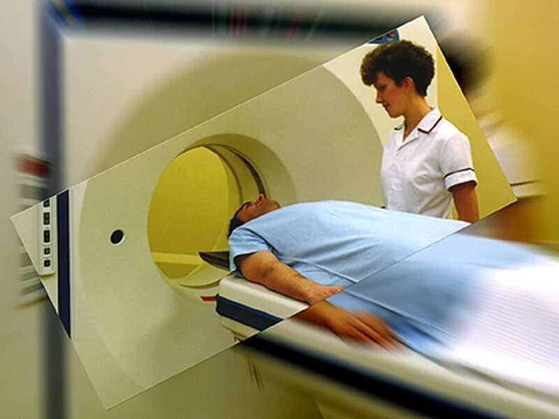 Study confirms CT screenings can cut lung cancer deaths