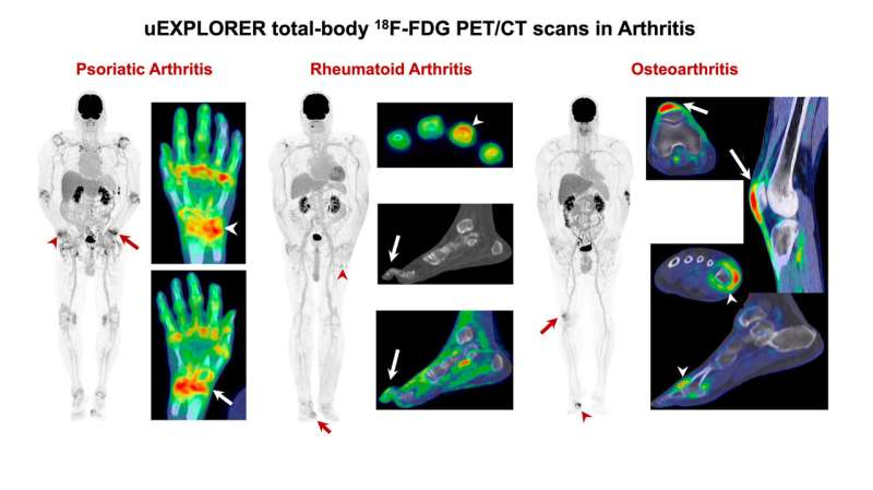Total-body PET/CT captures full picture of systemic inflammatory arthritis