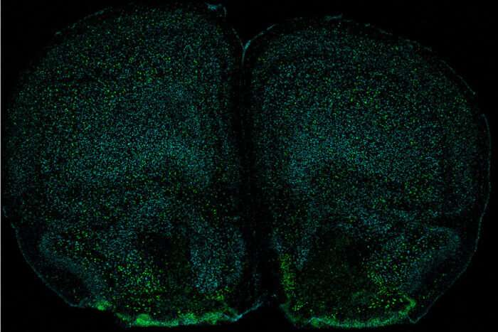 Immune system affects mind and body, study indicates