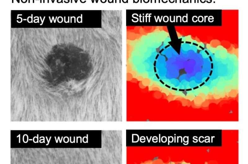 Researchers deconstruct tissue repair
