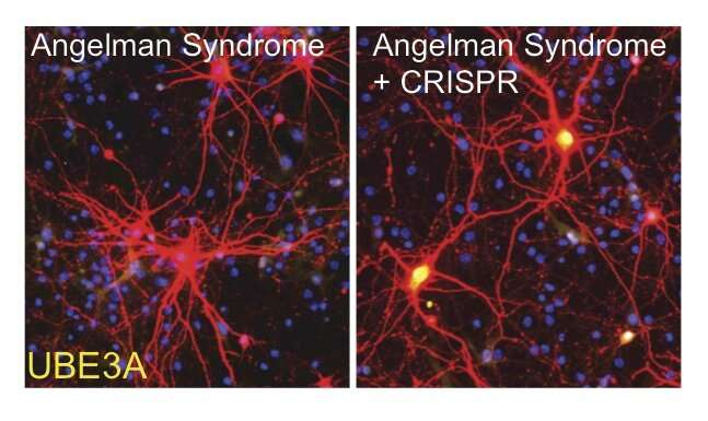 Scientists take major step toward Angelman Syndrome gene therapy