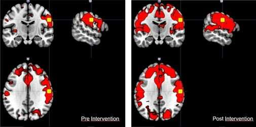 Virtual reality applied to rehabilitation for stroke and neurodegenerative disease patients