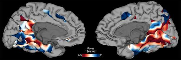 New study reveals areas of brain where recognition and identification occur
