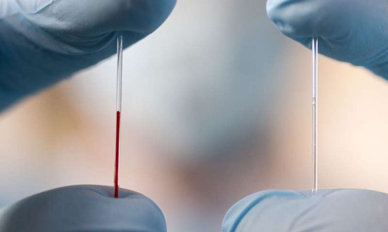 Extraction of largely-unexplored bodily fluid could be a new source of biomarkers
