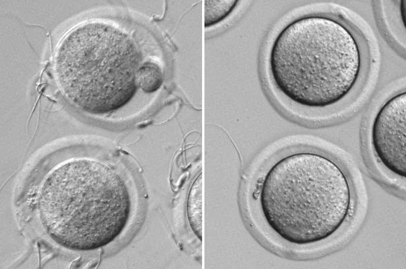 Novel switch protein that 'turns on' sperm for fertilization