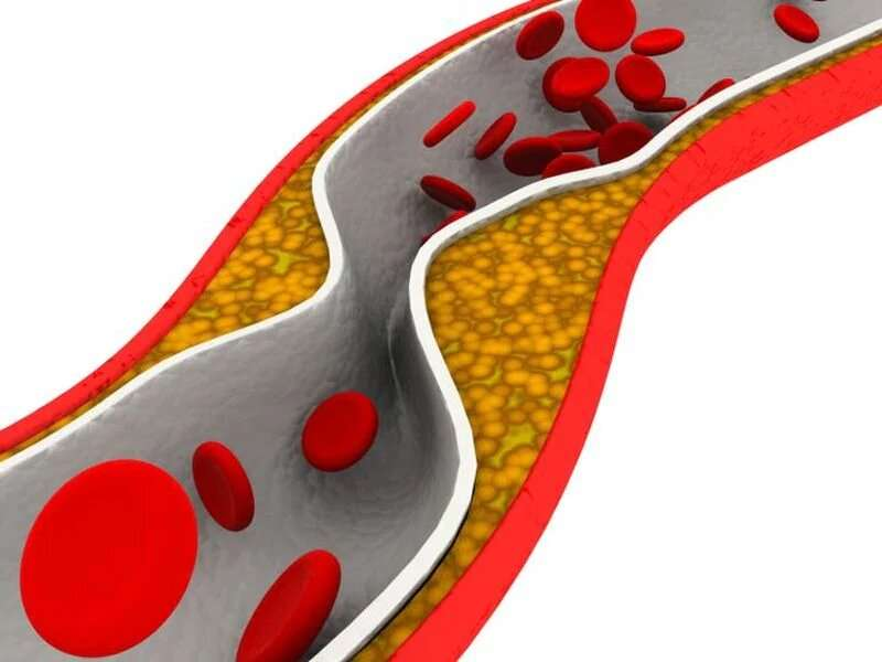 2015 to 2018 saw high total cholesterol for 11.4 percent of U.S. adults