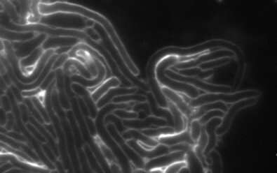 Researchers discover a novel family of toxins used in bacterial competition
