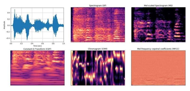 Deep learning-based cough recognition model helps detect the location of coughing sounds in real time