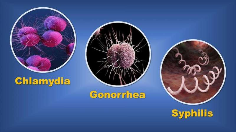 Study suggests reporting of sexually transmitted infections may be impacted by COVID-19
