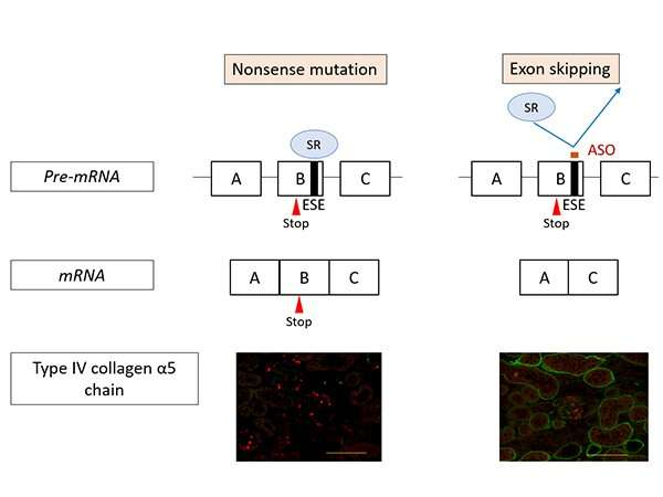 New treatment method for Alport syndrome uses antisense oligonucleotides