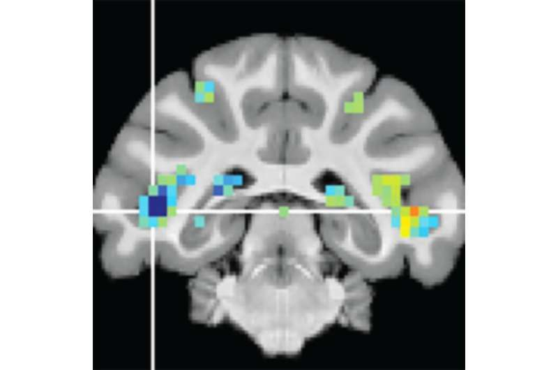 NIH researchers discover brain area crucial for recognizing visual events