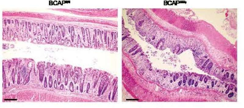Study pinpoints target for managing inflammation, promoting tissue repair