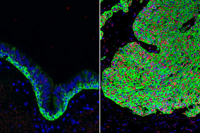 UCLA researchers discover new compound that promotes lung health