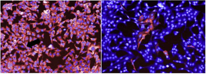 New study reveals how melanoma cells survive targeted therapies