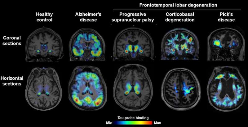 Brain imaging of tau protein in patients with various forms of dementia