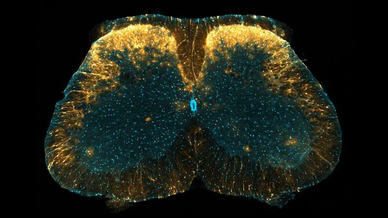 New mechanism of pain control revealed