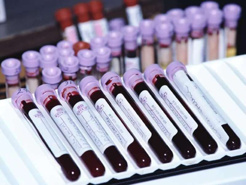 Your blood type may predict your risk for severe COVID-19