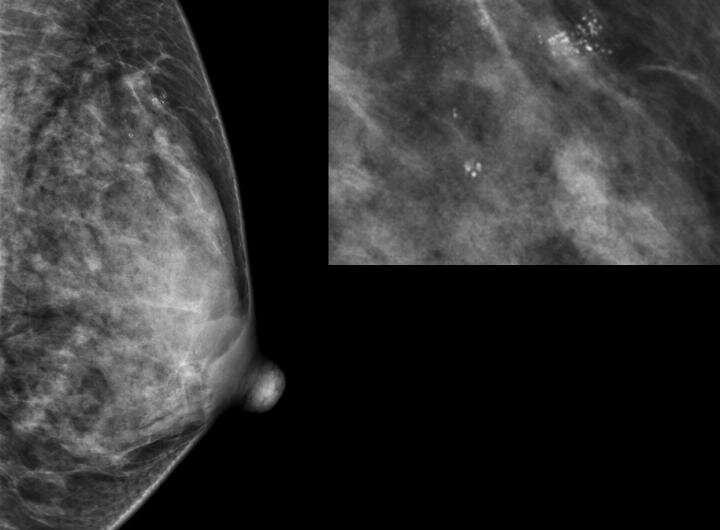 Researchers reveal which benign breast disease is most likely to develop into cancer