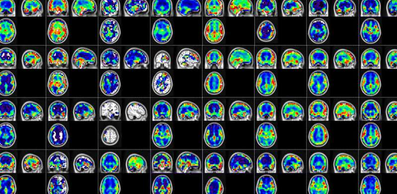 Artificial intelligence-based algorithm for the early diagnosis of Alzheimer's