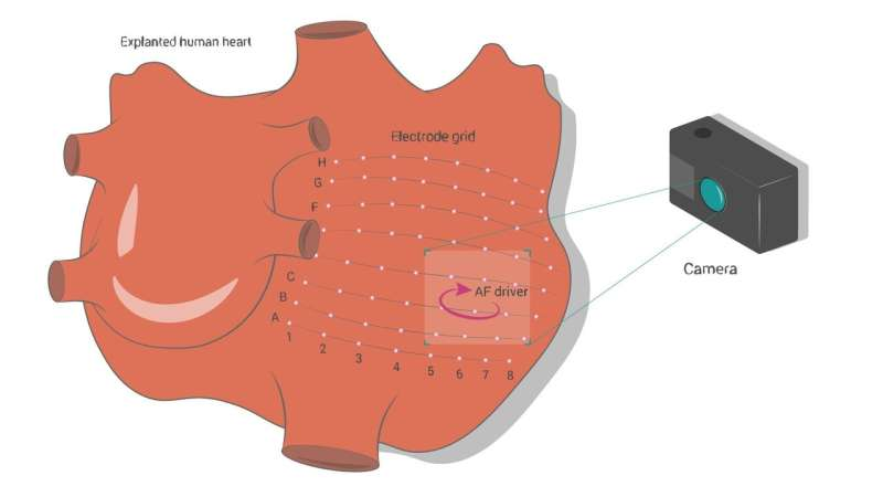 Machine learning helps pinpoint sources of the most common cardiac arrhythmia