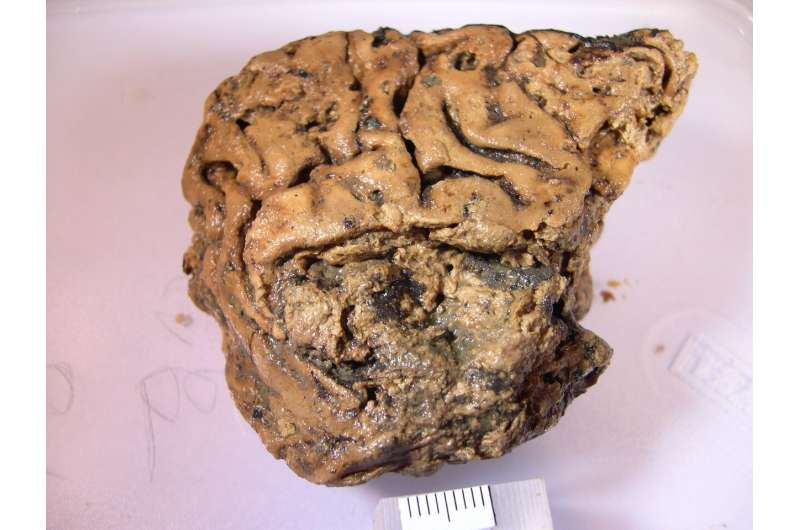 New clues to help explain how a 2,600-year-old brain survived to modern times