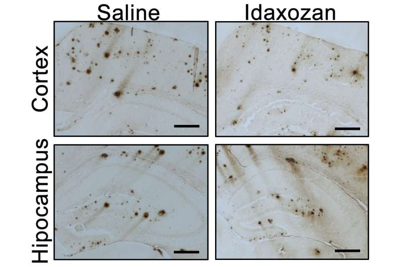 Pathogenic Alzheimer's disease cascade is activated by faulty norepinephrine signaling