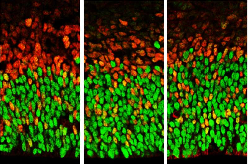 Gene associated with autism also controls growth of the embryonic brain