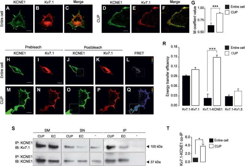 New route of assembly and ionic channel traffic in cardiac cells