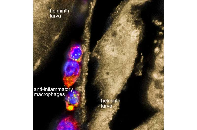 Worm extract found to reduce inflammation in mouse models