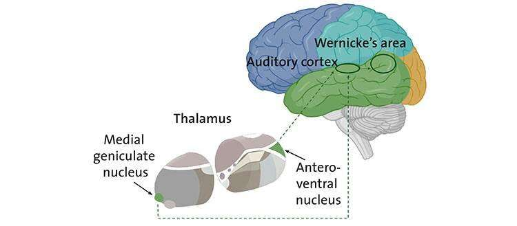 Schizophrenia: when the thalamus misleads the ear