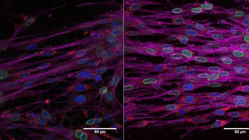 Rejuvenated fibroblasts can recover the ability to contract