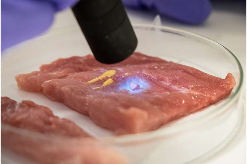 """Scientists develop """"biorubber"""" glue for faster surgical recovery and pain relief"""